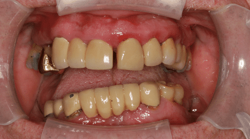 Dental Implants Patient 5