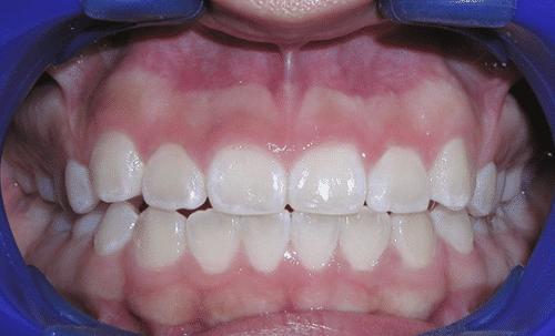 Laser Gum Patient