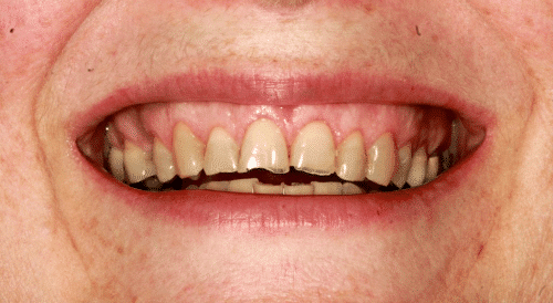 lori-before-smile-1024x562
