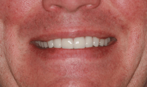 Porcelain Veneers Patient 1