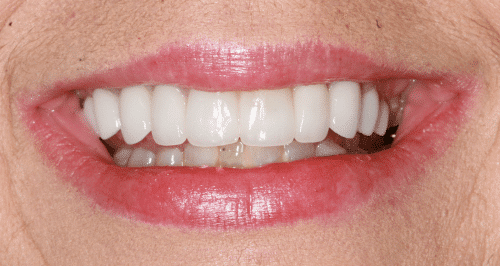 Porcelain Veneers Patient 2