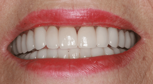 Porcelain Veneers Patient 3