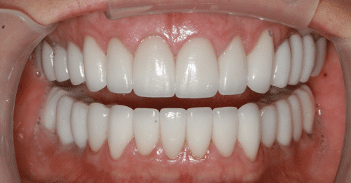 Porcelain Veneers Patient