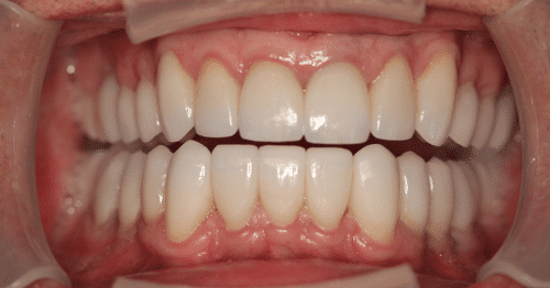 Full Mouth Rejuvenation 2