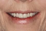Carol after smile
