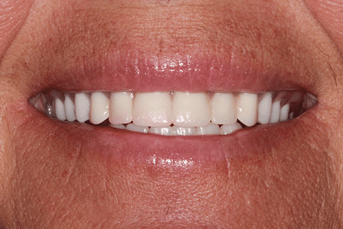 New You Dentures Julie After