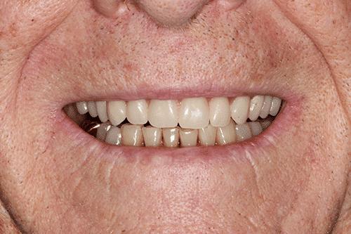 New You Dentures Richard After