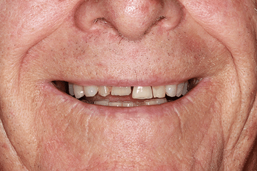 New You Dentures Richard Before