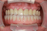 New You Dentures Roy After