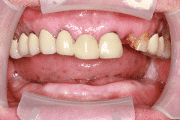 New You Dentures Roy Before