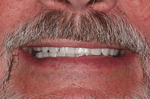 New You Dentures Patient 2 after
