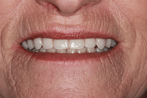 New You Dentures Patient 3 after