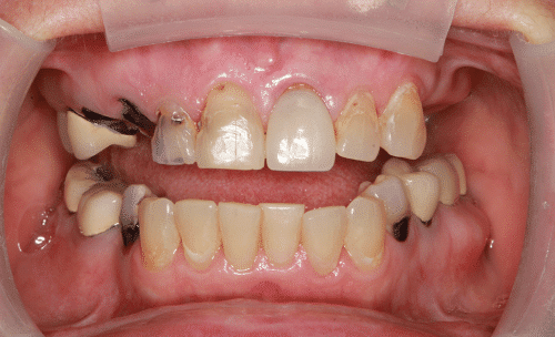 Dental Implant Patient Before 1