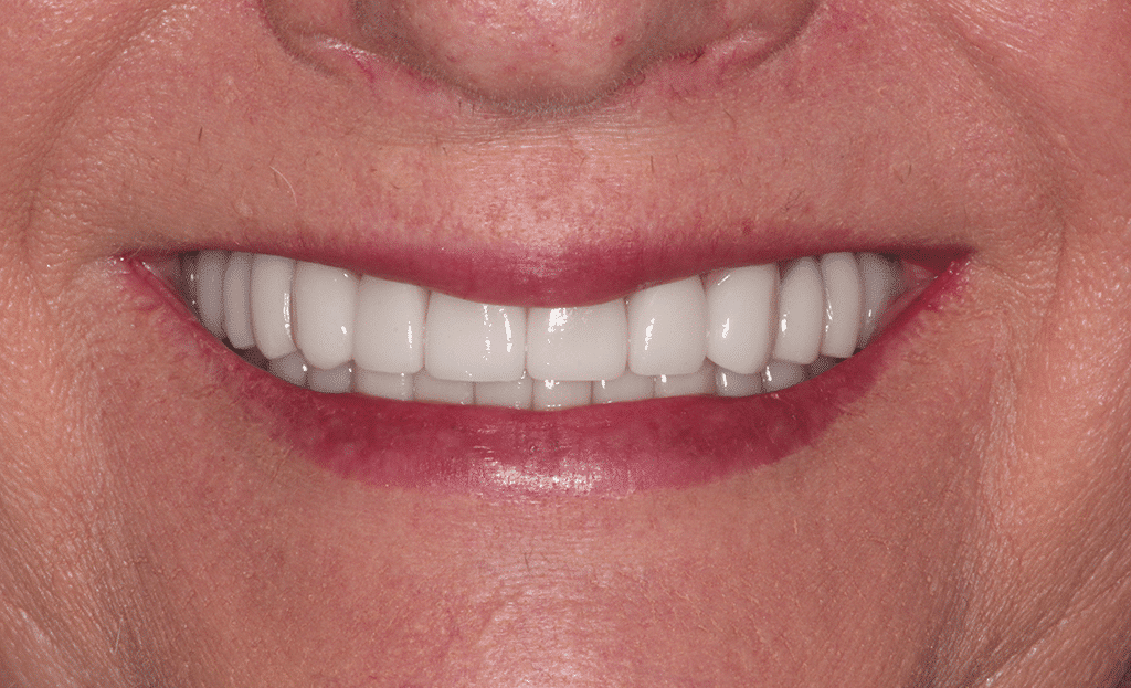 closeup of a womans smile after a full mouth rejuvenation