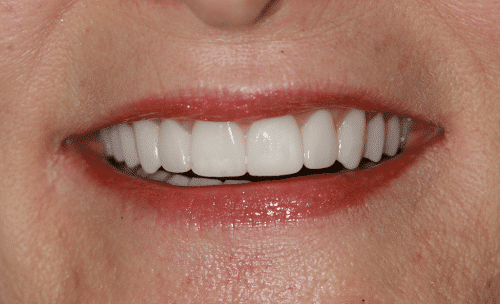 Full Mouth Rejuvenation Patient 2