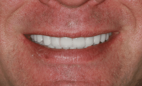Full Mouth Rejuvenation Patient 3