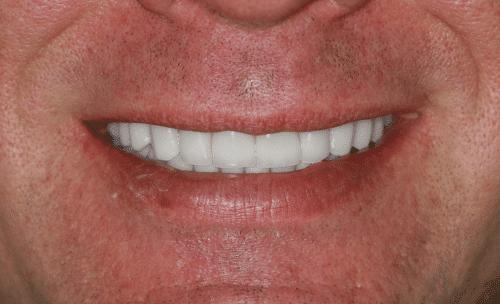 Full Mouth Rejuvenation Patient 3
