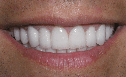 Full Mouth Rejuvenation Patient 4
