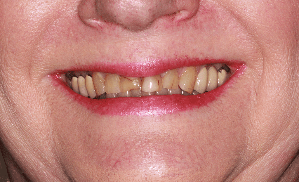 closeup of a womans smile before a full mouth rejuvenation