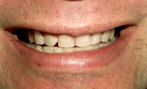 Full Mouth Rejuvenation Patient Before 3