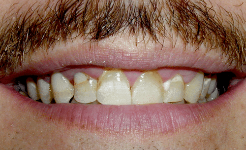 Full Mouth Rejuvenation Patient Before 4