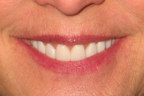 Laser Gum Patient 1 smile after