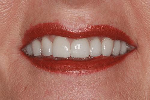 Laser Gum Patient 1