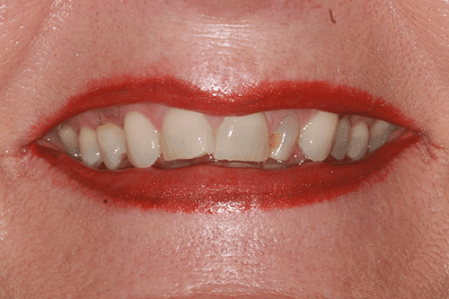 Laser Gum Patient 1 Before