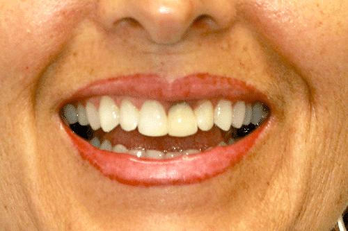rhonda-before smile