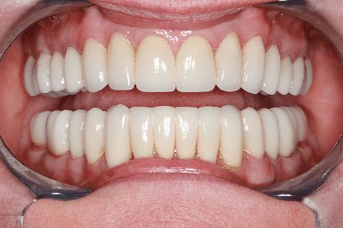 TMJ Patient 10
