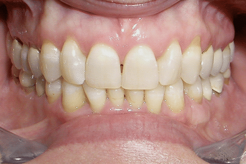 TMJ Patient 10 Before