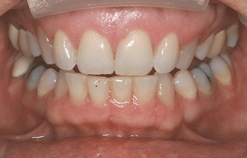 closeup of woman smile before TMJ treatment