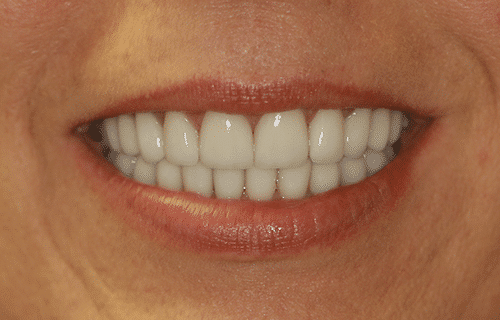 closeup of a woman smile after TMJ treatment