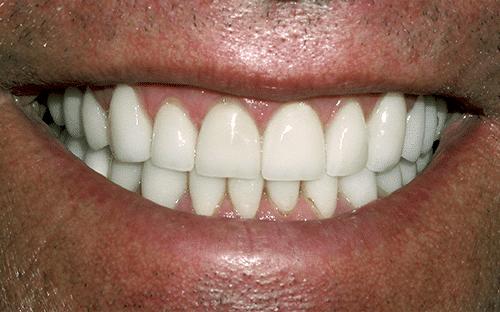 TMJ Patient 2