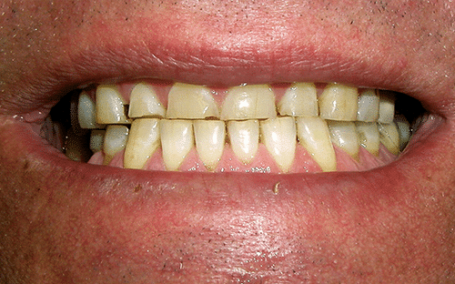 TMJ Patient 2 Before