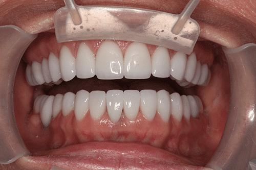 TMJ Patient 3