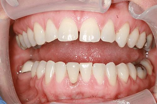 TMJ Patient 3 Before