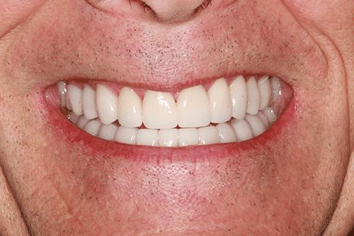 TMJ Patient 8