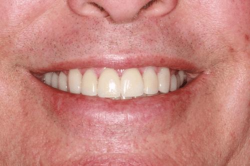 TMJ Patient 9