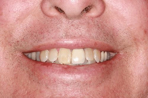 TMJ Patient 9 Before
