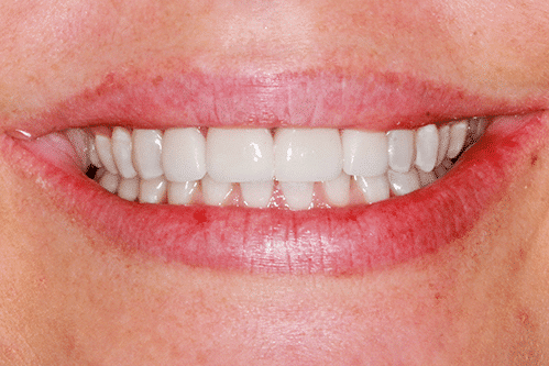 case 1- Porcelain Veneers After