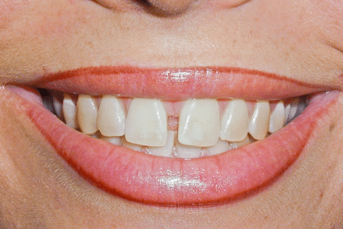case 1 -Porcelain Veneers Before