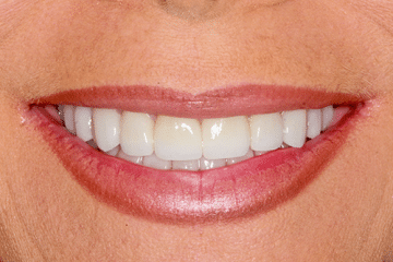 case 2- Porcelain Veneers After