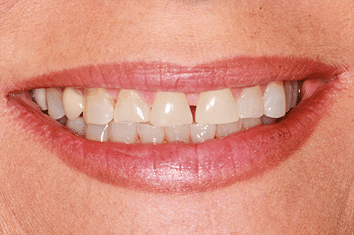 case 2 -Porcelain Veneers Before