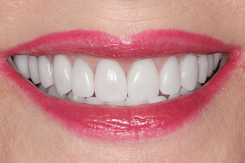 case 3- Porcelain Veneers After