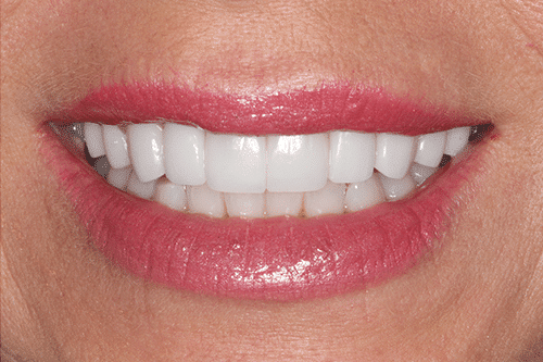 case 4- Porcelain Veneers After