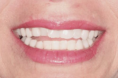 case 4 -Porcelain Veneers Before