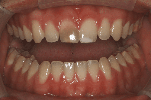 case 5 Porcelain Veneers Before