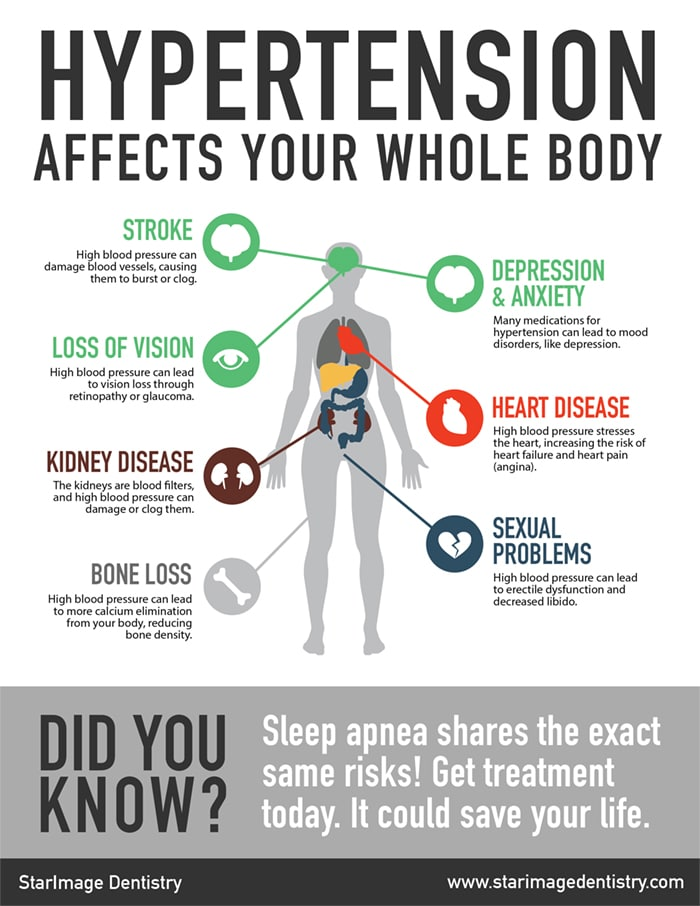 StarImageDentistry-sleep-apnea-infographic