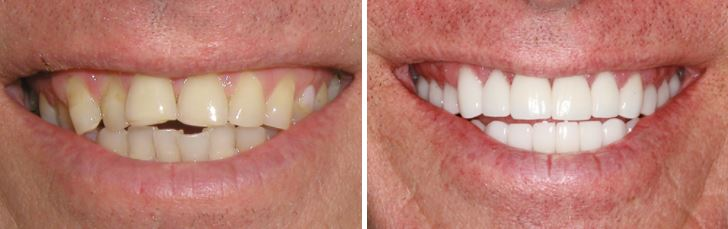 A man's before and after of his dental treatments at Starimage Dentistry in Wichita Falls, Texas